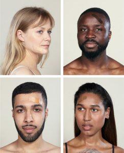 NASF het grotere verband huidskleur pleisters