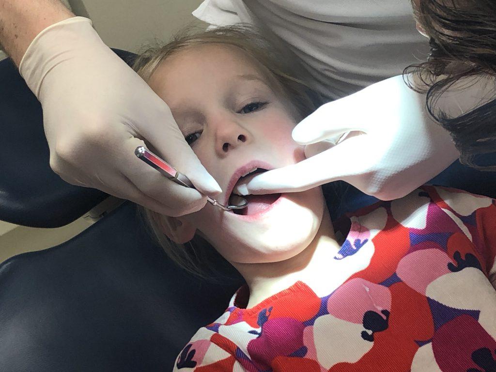 mondgezondheid, melkgebit, tanden wisselen, tandarts